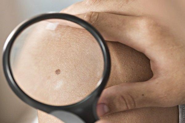 کشف پروتئینی برای توقف سرطان پوست