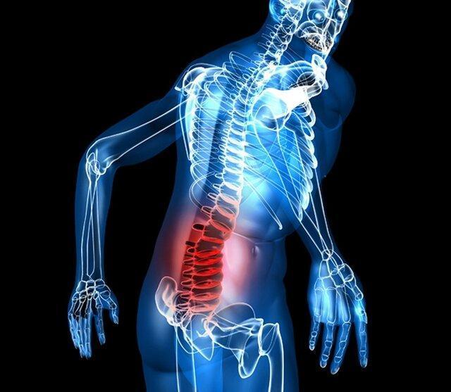 نکاتی برای رهایی از درد سیاتیک