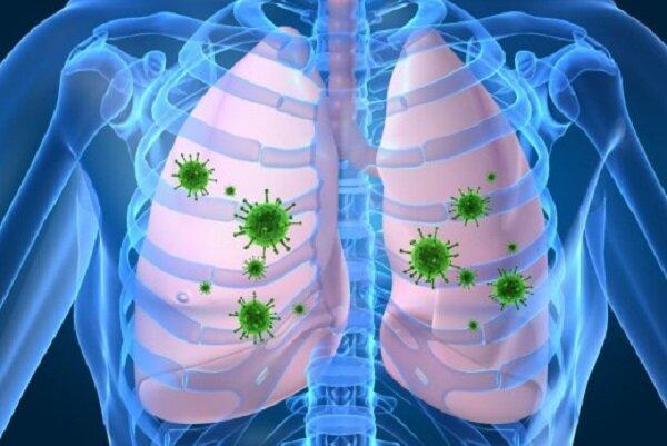 مدل سازی ریاضی برای شناسایی و بهبود آسیب های ریه