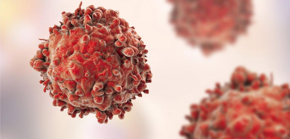 فولیکول های مو سلولهای سرطانی پوست را مهار می کنند