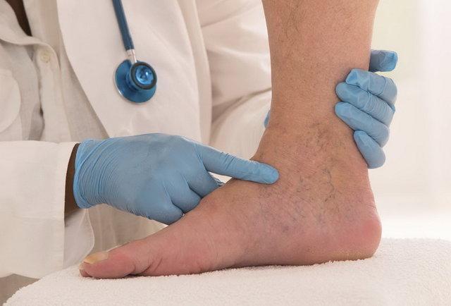 12 تمرین برای پیشگیری از پیچ خوردن مچ پا