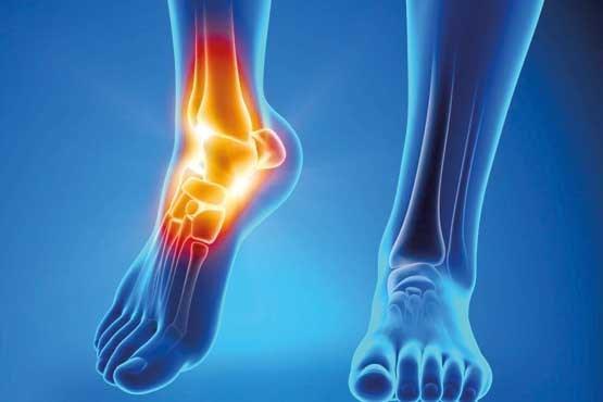دردهای مفصلی را چطور کم کنیم؟