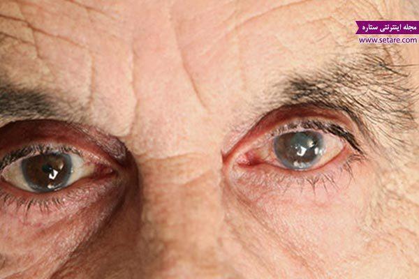 درمان خانگی آب مروارید چشم (درمان آب مروارید با طب سنتی)