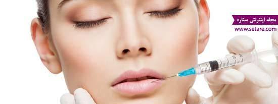 عوارض پروتز لب و تزریق ژل به لب چیست؟